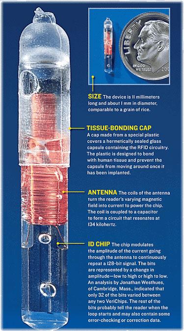 Secretly forced RFID chips brain implants